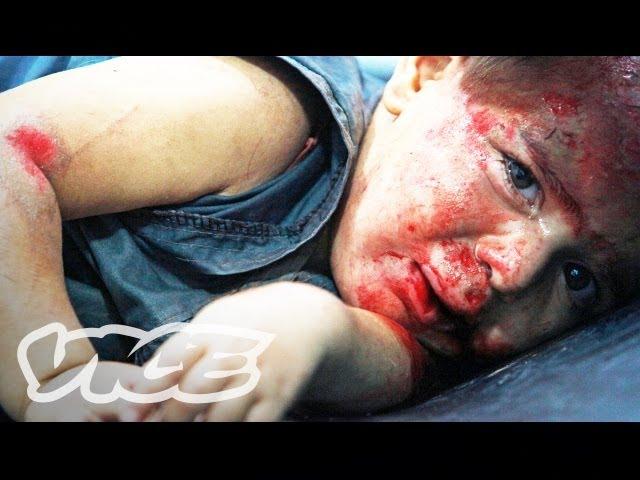 Ground Zero: Syria (Part 3) - The Atrocities Within Aleppo's Field Hospital