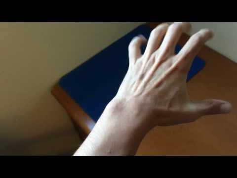 Brutally popping a ganglion cyst