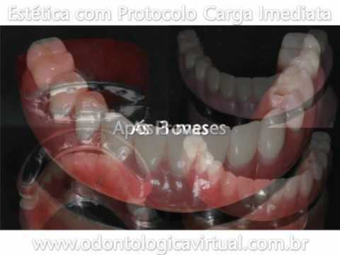 Odontologia Estética com Protocolo Carga Imediata