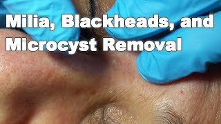 Milia, Blackheads, and Microcyst Removal