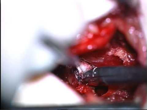 bergman kliniek hernia operatie