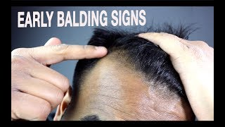 How To Know if You're Going Bald | Signs of Male Pattern Baldness