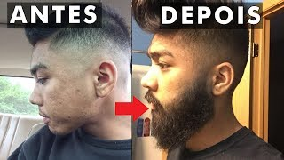 É possvel fazer a barba crescer em quem no tem?