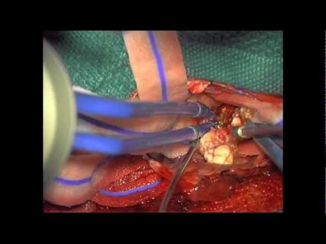 neuroArm resection of cavernoma