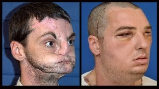 Face Transplant Guy Meets The Donor