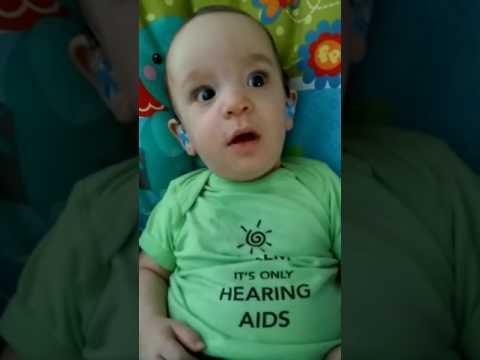 ردة فعل رضيع أصم يسمع صوته لأول مرة