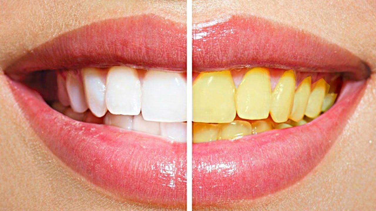 Как отбеливать зубы в домашних условиях легко