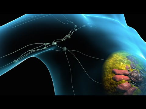 Breast Cancer Tumor Removal Surgery
