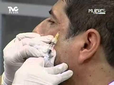 Aplicación del Ácido Hialurónico (METVC)
