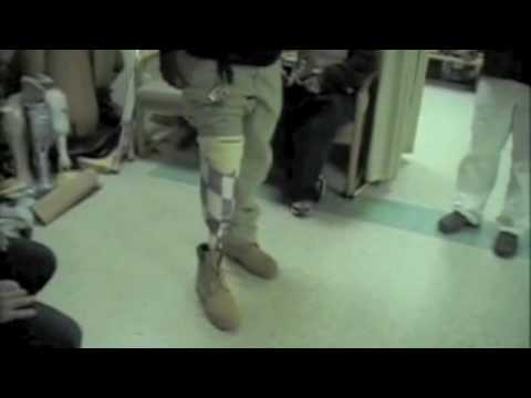 Prosthetics: How It s Made III (2/2)