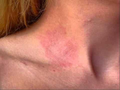 Irritant Contact Dermatitis from Plants - Today on Medscape