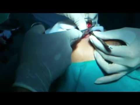 น้องทำจมูก ตอนผ่าตัด