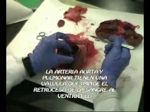 Disección de corazón en Retamar