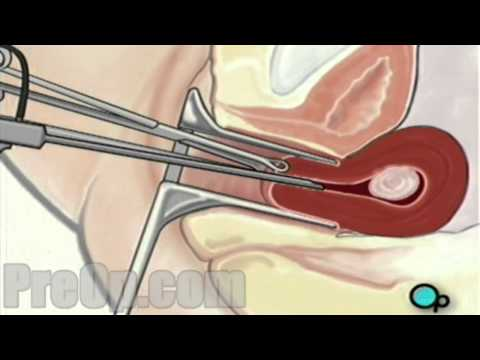 Myomectomy Vaginal Fibroid Removal Preop® Patient Engagement And Education video
