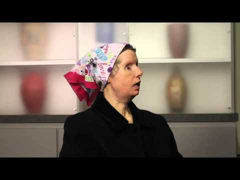 Face transplant recipient Charla Nash talks about her life.