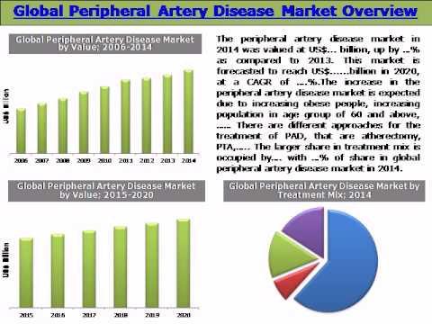 Global Peripheral Artery Disease Market (PAD): Trends & Opportunities (2015-2020) - Daedal Research
