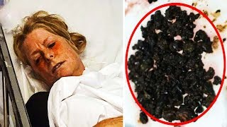 Doctors Find 200 Stones In Woman's Gut After She Skipped Breakfast For Over 10 Years