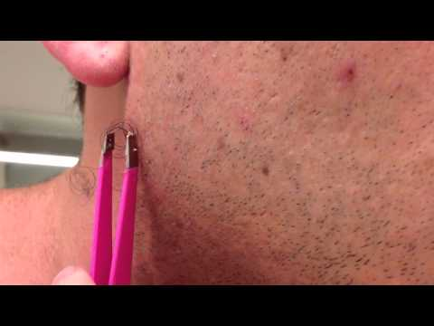 The Longest Grossest Ingrown Hair In History
