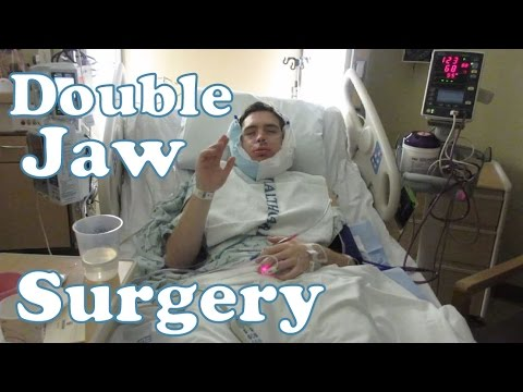 Double Jaw Surgery & Recovery