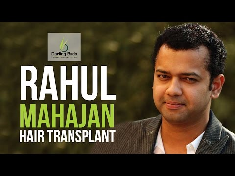 Rahul Mahajan Hair Transplant with Dr Tejinder Bhatti Darling Buds Chandigarh