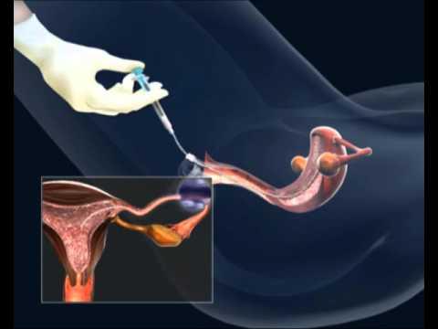 забор спермы процедура-чб2