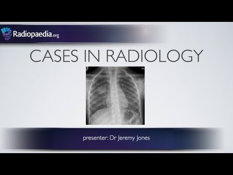 Cases in Radiology: Episode 3 (pediatric, chest x-ray)