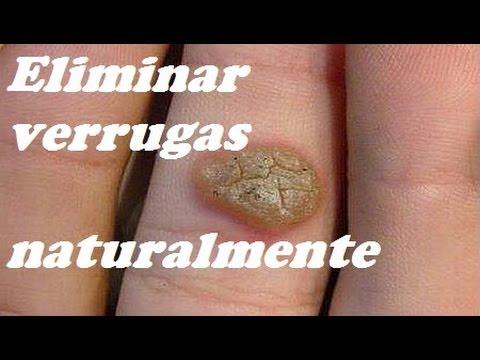 TRES REMEDIOS PARA ELIMINAR VERRUGAS. Three remedies to eliminate warts.