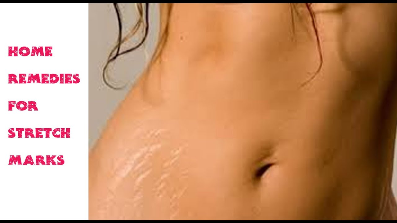 Stretch Marks Removal Home Remedy Home Remedies For Stretch