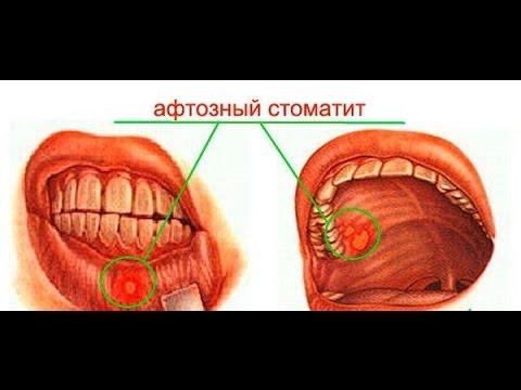 Стоматит-лечение у взрослых в домашних условиях 840