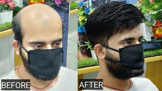 Hair patch, clipping, tapping, bonding, fixing, hair replacement, in Delhi by anas sheikh,9650914665