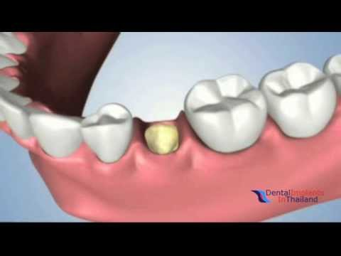 Extraction Ridge Preservation and Socket Grafting With Alveolar Ridge Preservation in Bangkok 3D