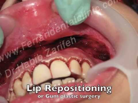 Laser Gummy smile surgery correction, lip repositioning and gum plastic surgery in Lebanon Beirut