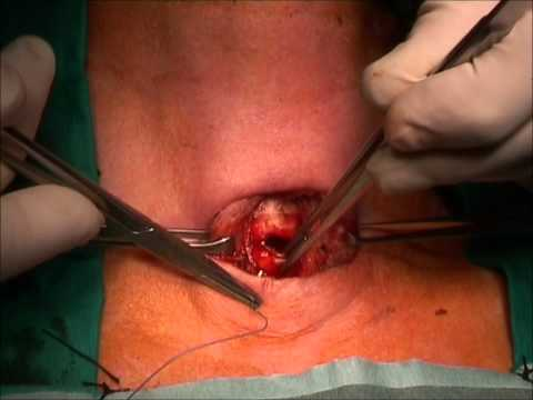tracheotomia.wmv