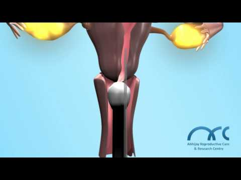 ICSI- 3D.Top IVF centers.Advanced Fertility treatments.Medical Tourism India, Infertility-ARC Centre