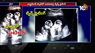 Unborn Twins spotted fighting inside Mother's Womb | Social Media Viral Videos  News