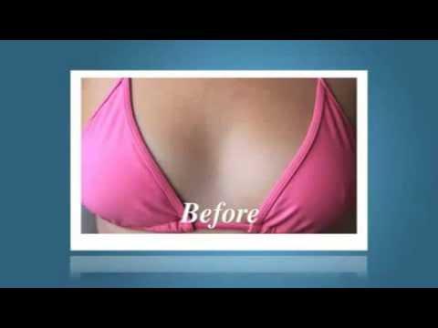 breast enlargement cream in Lahore  Call 0300 5550166