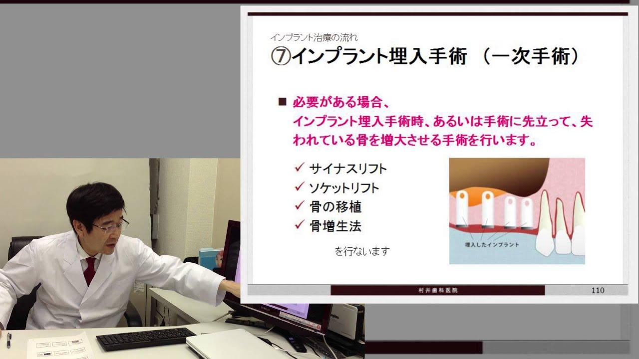 【第十一回】インプラント治療の流れ(3)