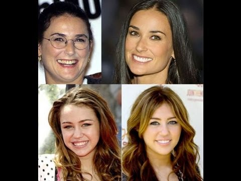 Holllywood stars before and after cosmetic dental surgery + basic dental hygiene tips.