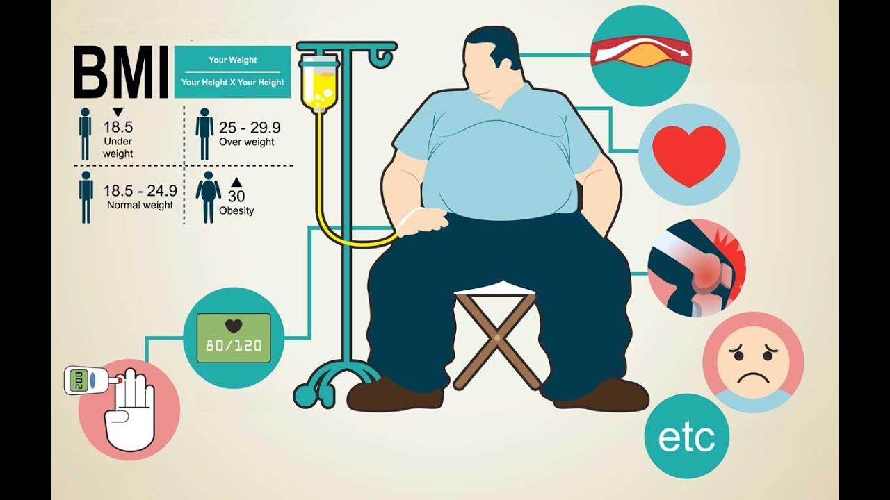L'obesità riconosciuta come malattia cronica