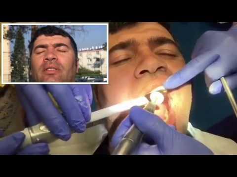 Как делают ламинирование Зубов в Израиле ( Очень полезный фильм 🎥 )