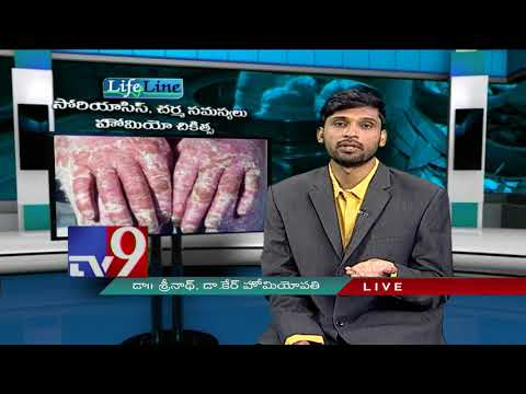 Psoriasis, Skin problems : Homeopathic treatment || Lifeline - TV9