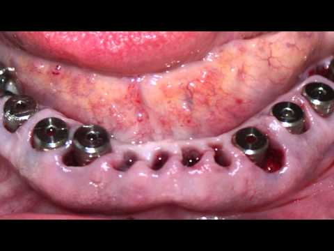 India Full Dental implant surgery procedure immediate extraction punjab jalandhar