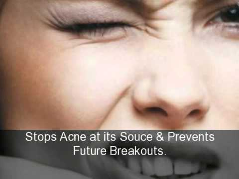cure acne tips
