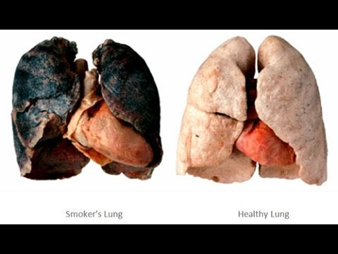 Quit Smoking: Smoking Kills Watch Effects Of Smoking Cigarettes Side Effects Lung Cancer Commercial