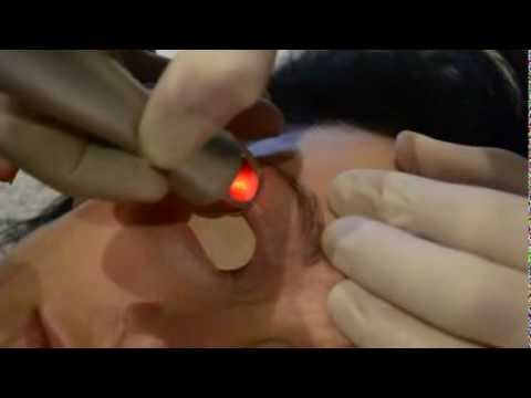 Removing wrinkles and dark circles under eyes using laser