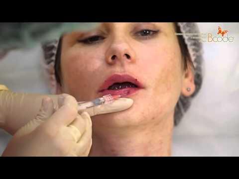 Коррекция губ гиалуроновой кислотой: красота без жертв