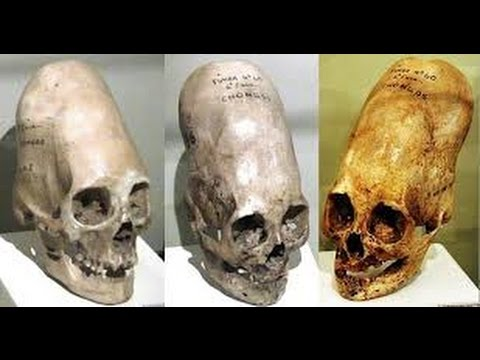 The Mandela Effect (The Human Skull's Temples Are More Like Elongated Skulls Now) Please Vote #64 thumbnail