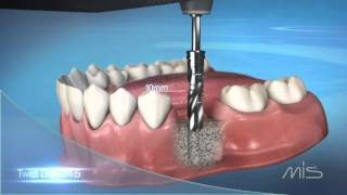 MIS M4 Implant Procedure Video