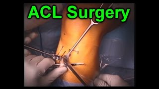 ACL Knee Orthopaedic Reconstruction Surgery