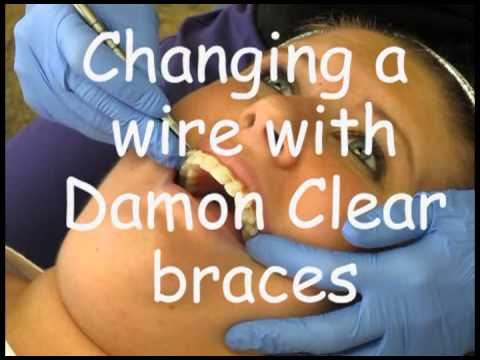 Changing the wire with Traditional braces vs. Damon System Braces